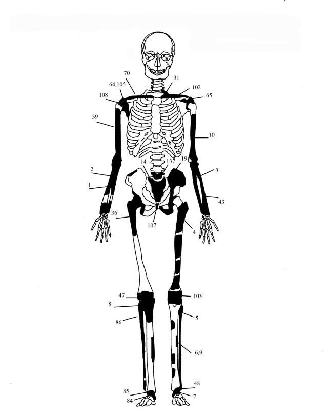 Εικόνα 2: Ενδεικτική εκπροσώπηση οστών Ατόμου 1 με φωτογραφίες οστών.