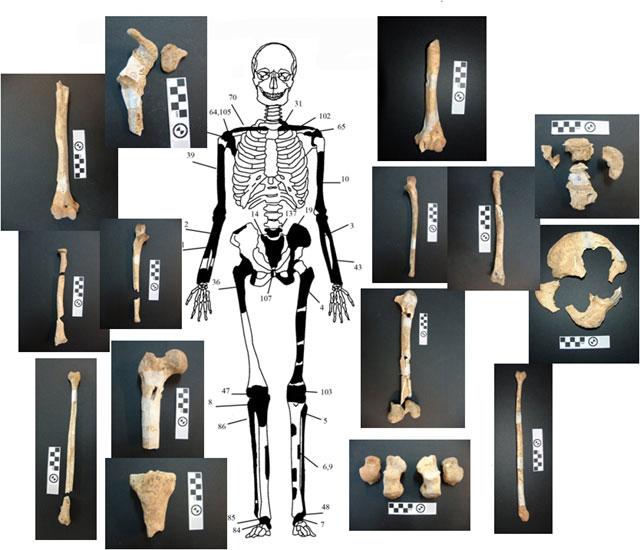 Εικόνα 3: Ενδεικτική εκπροσώπηση οστών Ατόμου 2.