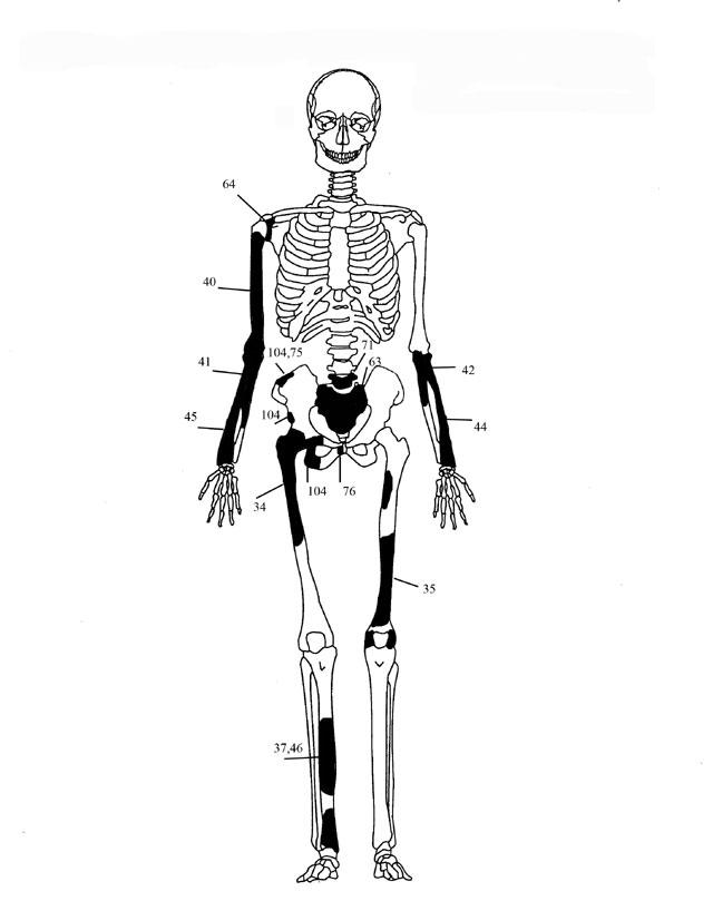 Εικόνα 4: Ενδεικτική εκπροσώπηση οστών Ατόμου 2 με φωτογραφίες οστών.