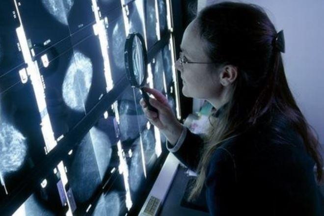 Έρευνα: Ένας στους δύο θα εμφανίσει καρκίνο κάποια στιγμή στη ζωή του