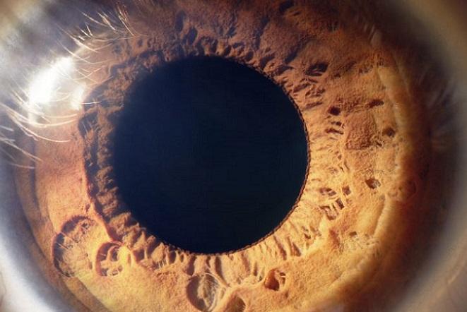 Τέλεια όραση σε όλους υπόσχεται ο βιονικός φακός