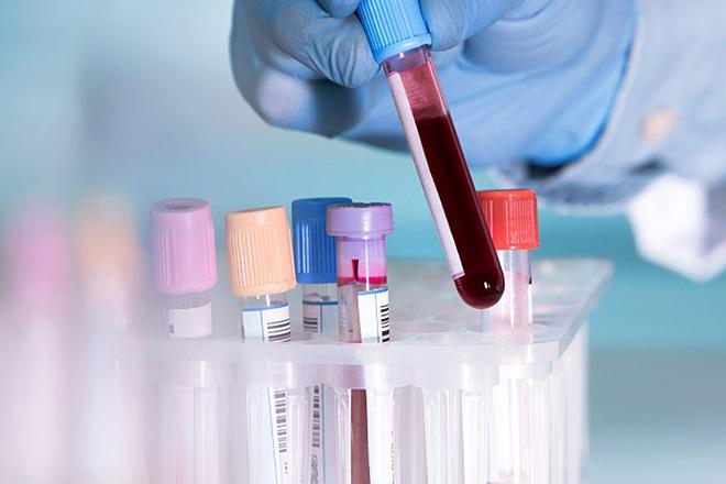 Νέο ελπιδοφόρο τεστ αίματος για την ανίχνευση της νόσου Alzheimer's ανέπτυξαν επιστήμονες