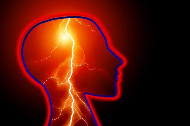 epilepsy brain human stroke